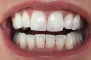 closeup of teeth