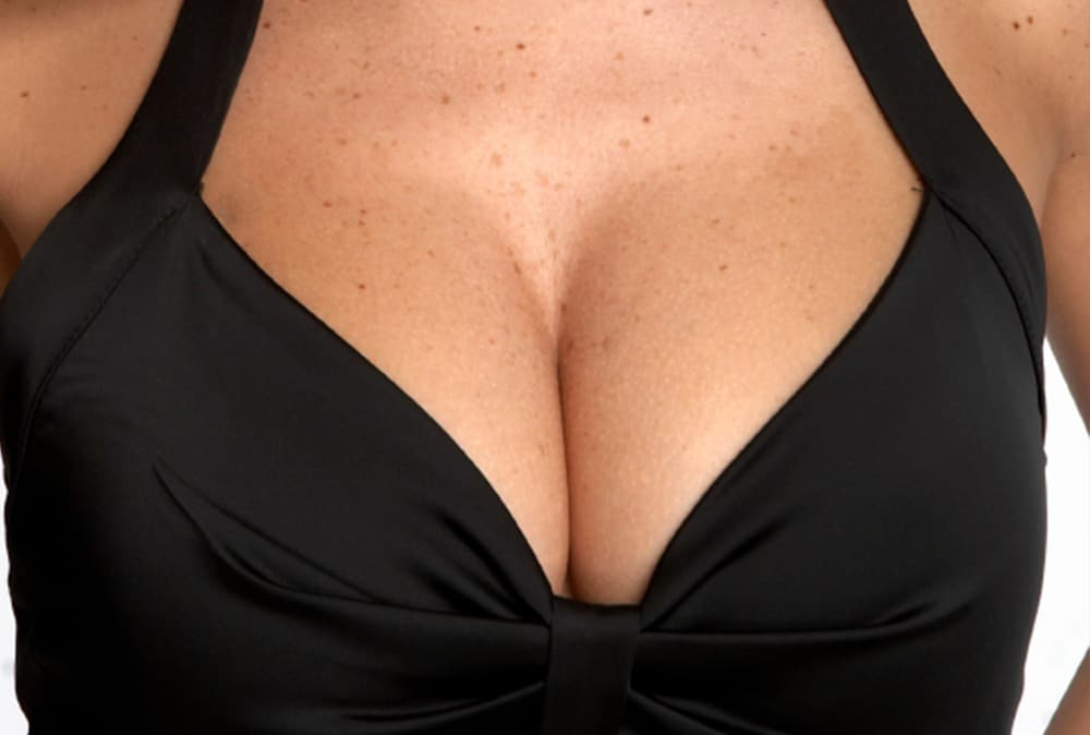 What Are My Breast-Lift Incision Options?