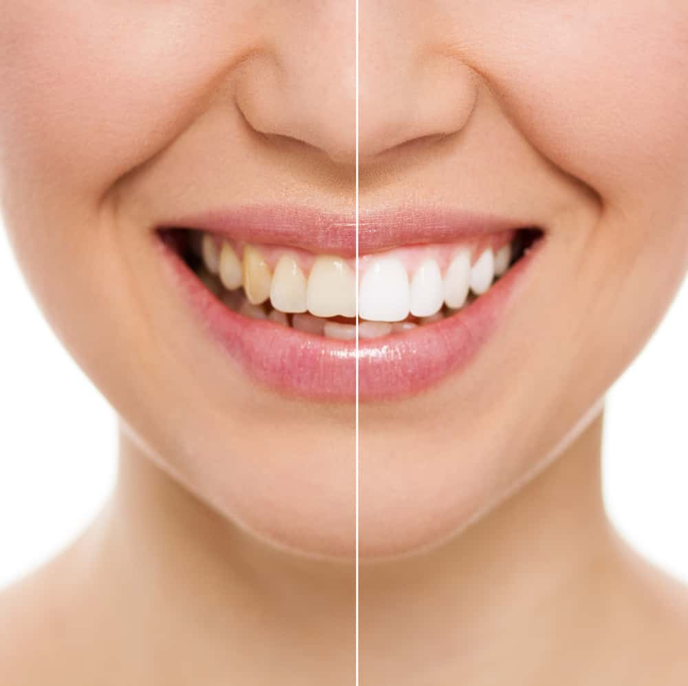 Want pearly white teeth? Step away from the chemical-ridden store-bought teeth whitening kits and try one of these easy, at-home natural DIY teeth whitening recipes - for sparkling, white teeth without the harsh ingredients!