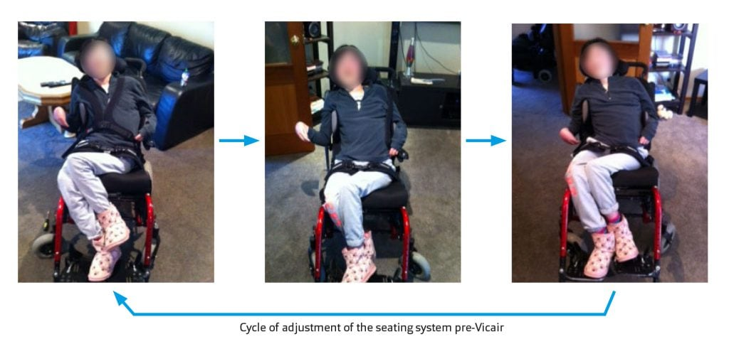 Clinical Case Cycle of Adjustment of the Seating System pre-Vicair