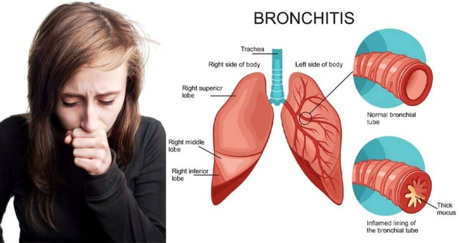 A girl has a bronchitis. She must have a lung training.