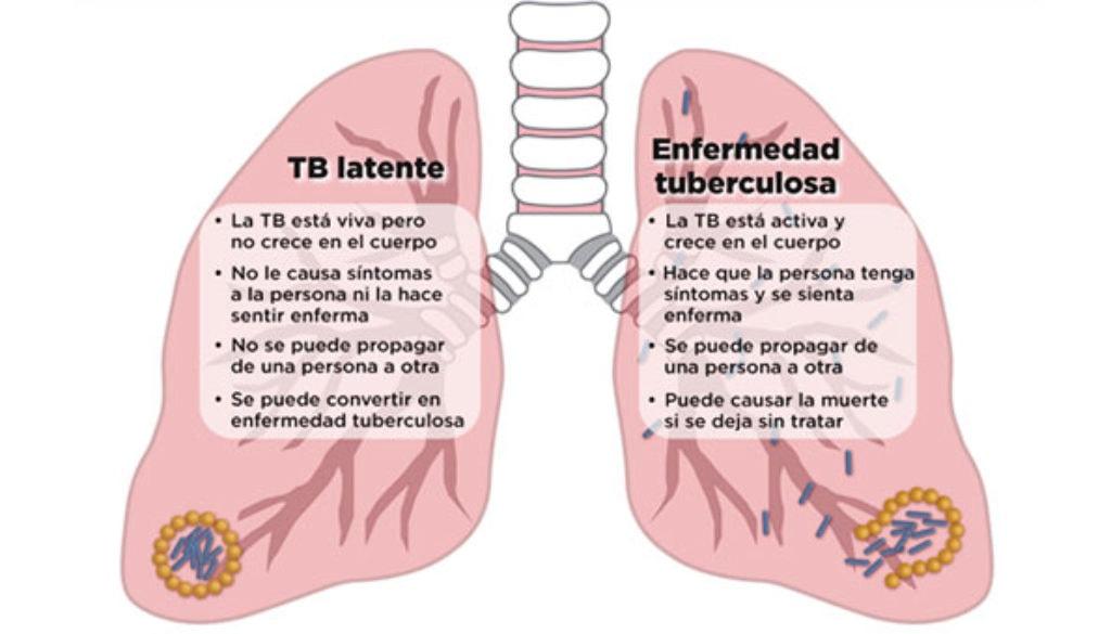 latente_tb