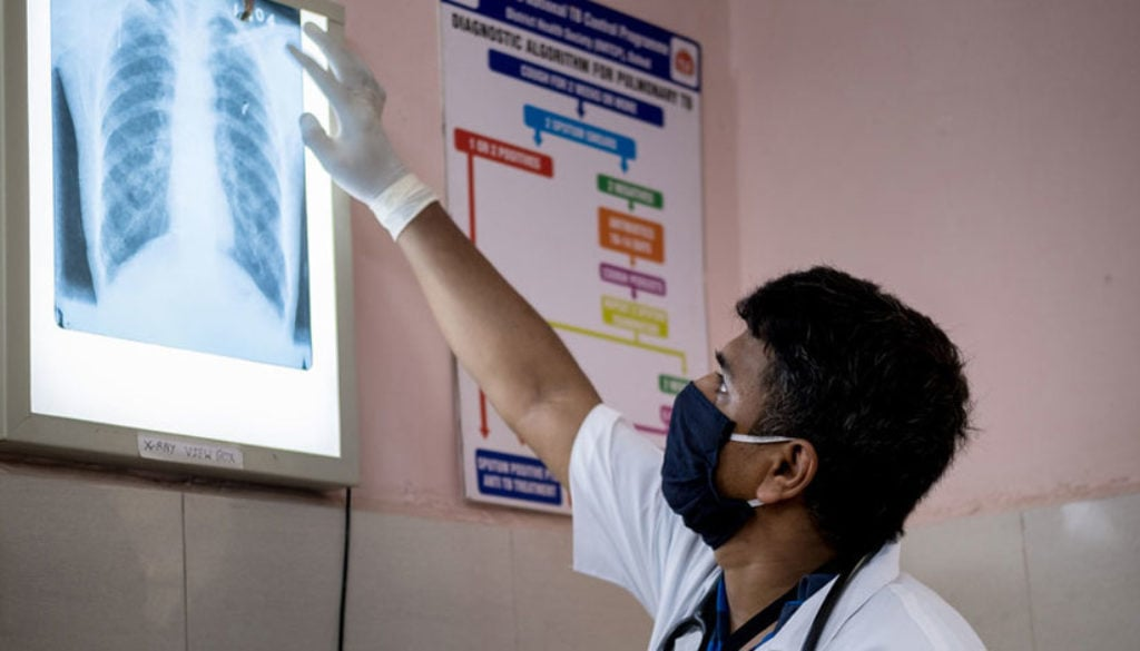 doctor-with-xray-india