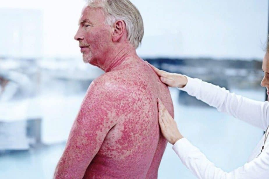 Elder man has a psoriasis issue.