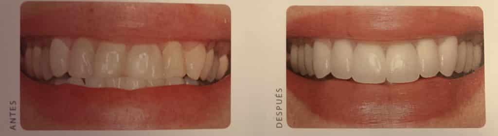 coronas dientes mal alineados