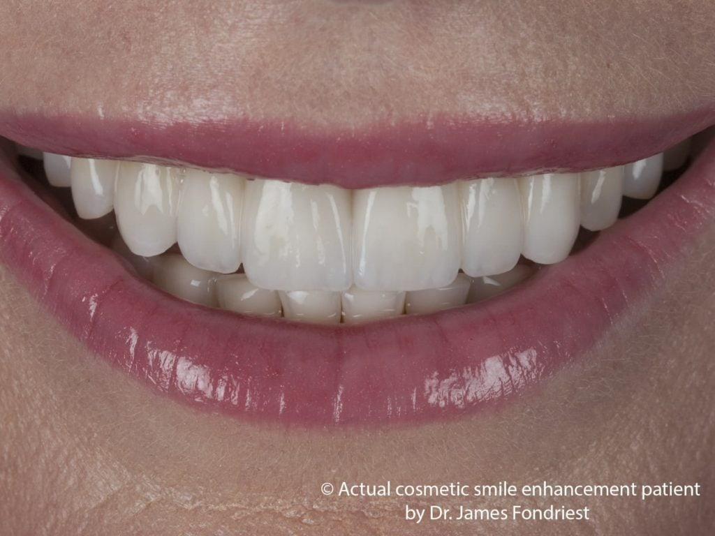 Porcelain dental bridge