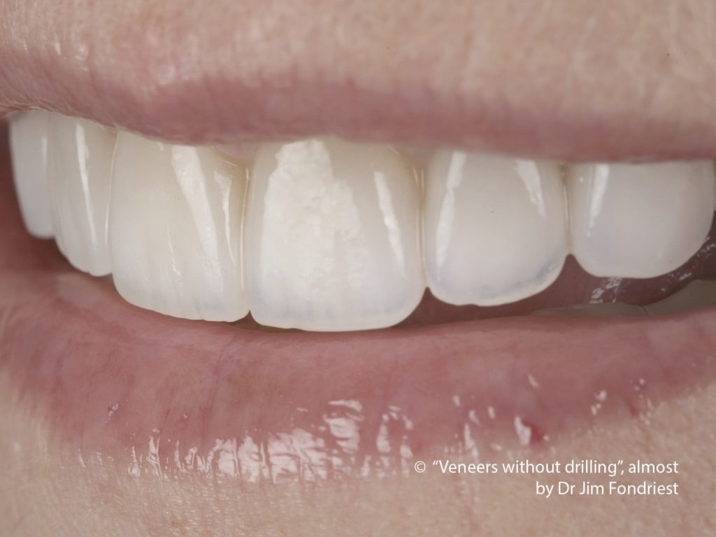 Veneers without drilling