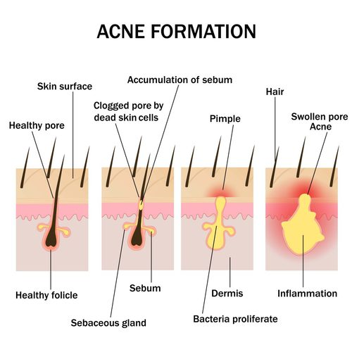 Skin consists of follicles, whcih may get blocked due to sebum, dead skin cells. USe these home treatments for acne to clear up debris and get clear skin