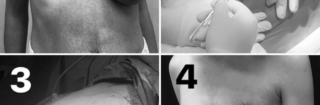 mellaszimmetria műtéti képek