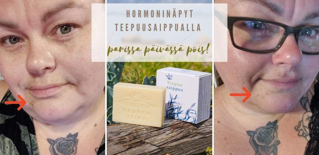 Hormoninäpyt teepuusaippualla parissa päivässä pois!