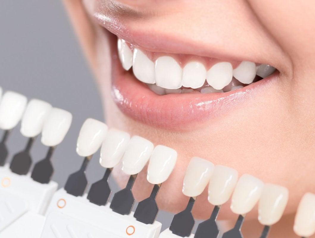 Teeth Whitening Dubai