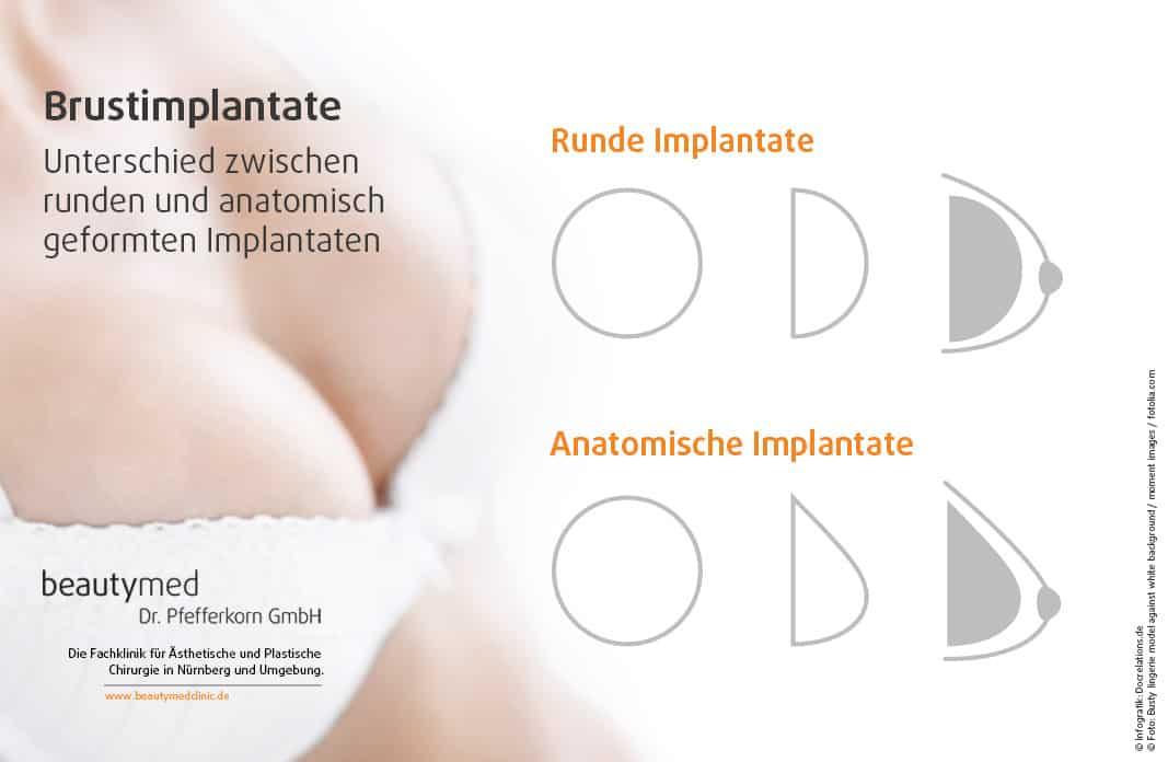 Unterschiede zwischen Implantaten