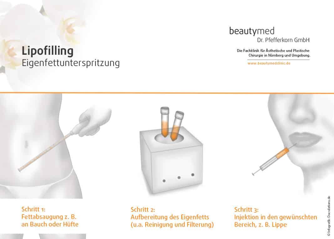 Lipofilling Nürnberg