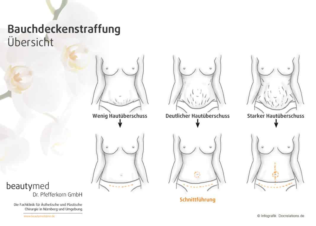 Bauchdeckenstraffung Nürnberg