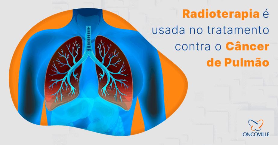 Radioterapia tratamento câncer de pulmão