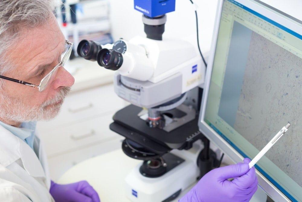 Preimplantation Genetic Diagnosis: PGD