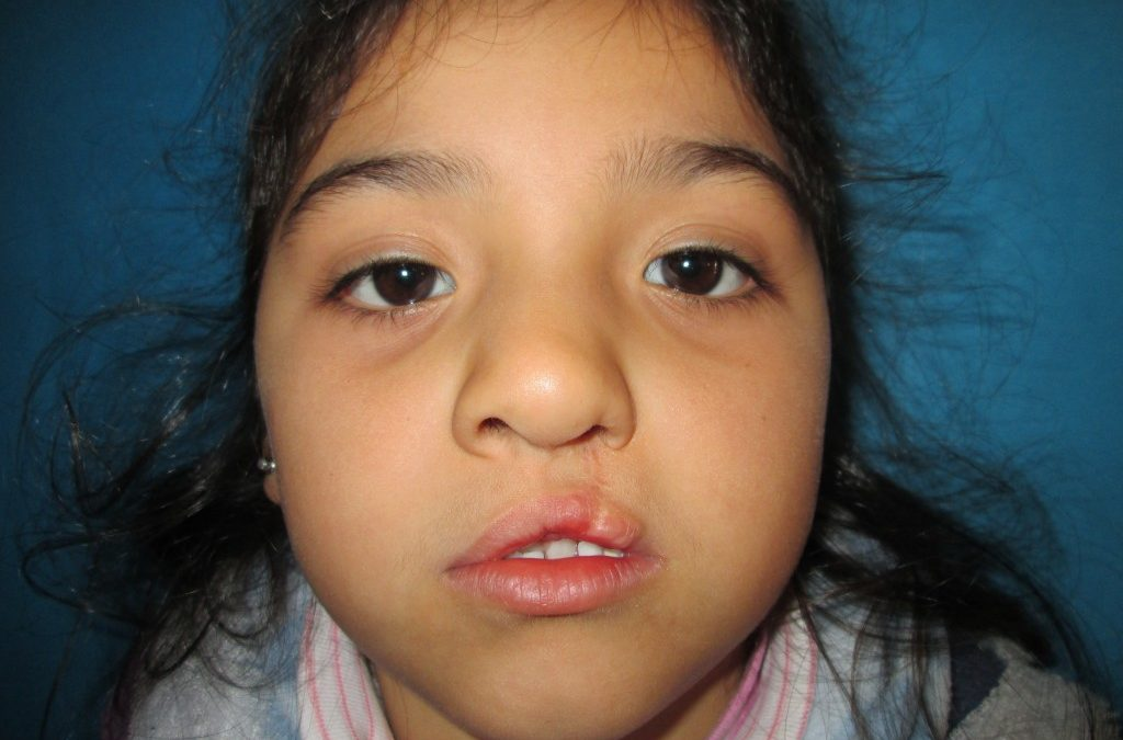 Meet Milagros: Gaining Confidence through Cleft Care