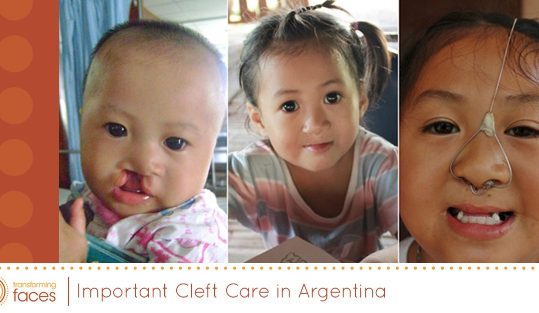 Important Cleft Care in Argentina