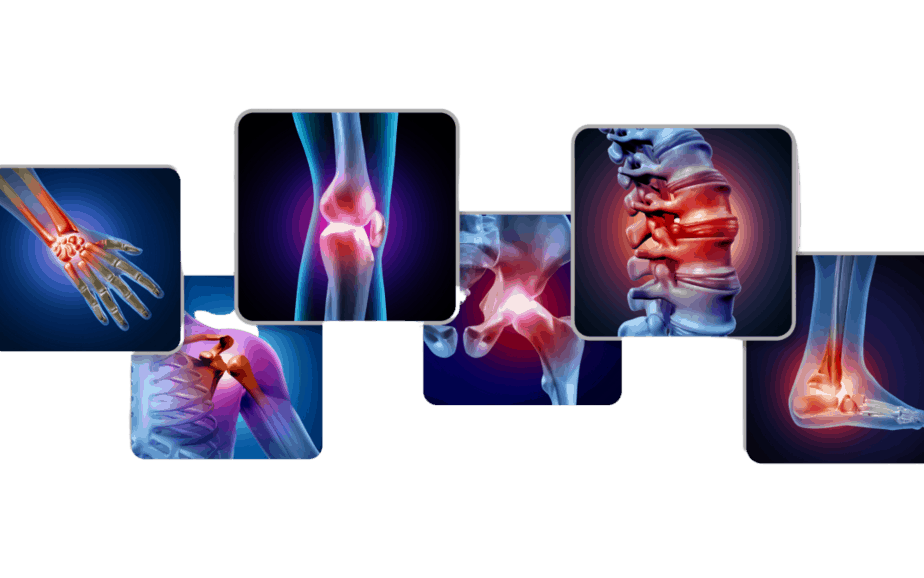 Arthritis Pain and Rehabilitation