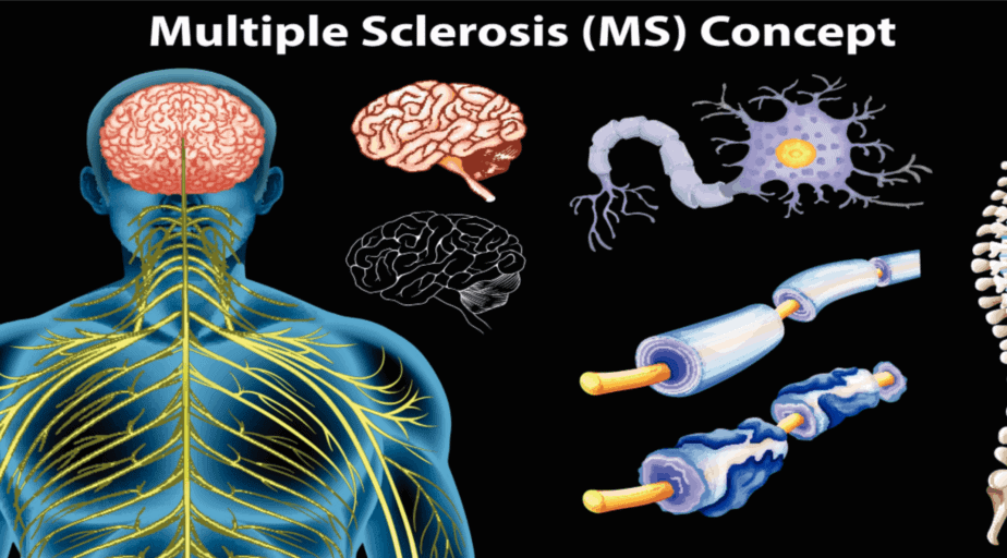 Multiple Sclerosis - Buffalo Occupational Therapy - Outpatient occupational therapy