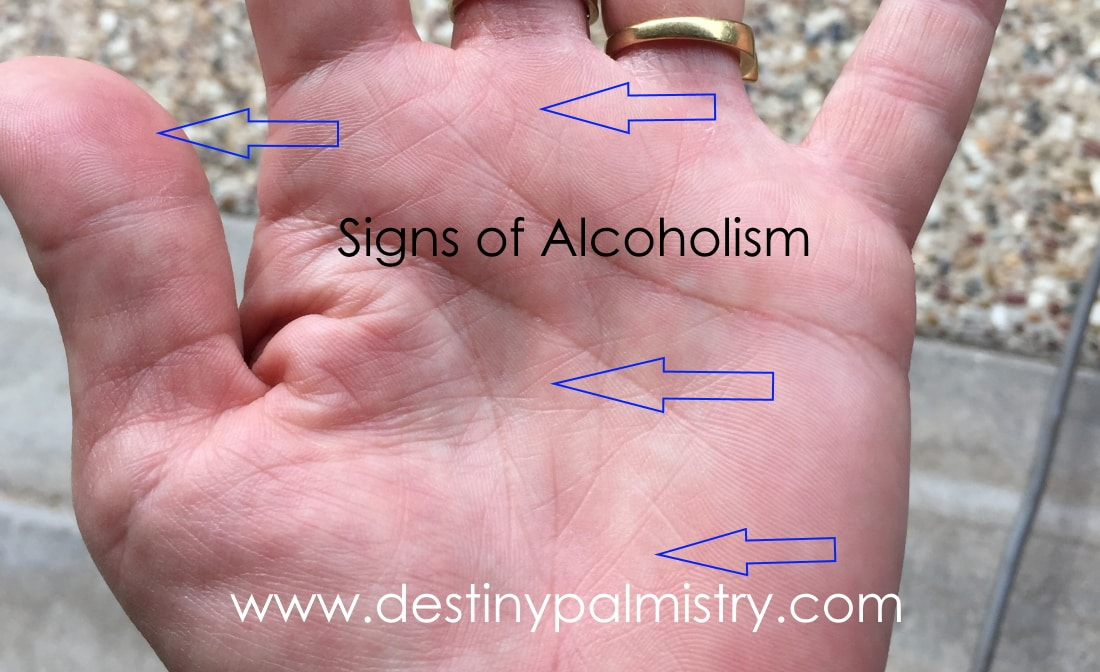 signs of alcoholism in palmistry