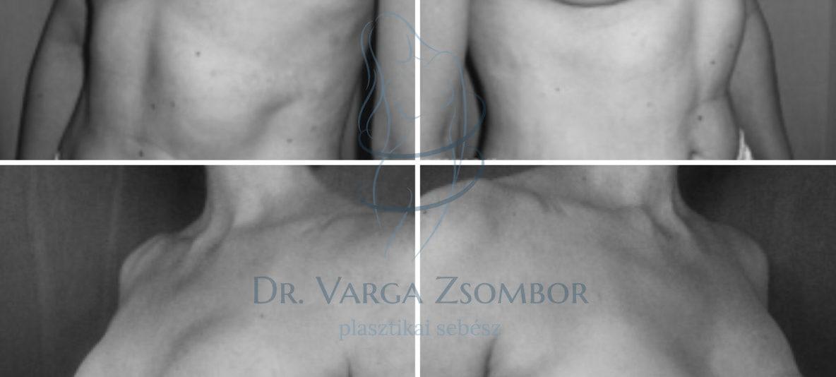 Emlőrák utáni helyreállító műtét