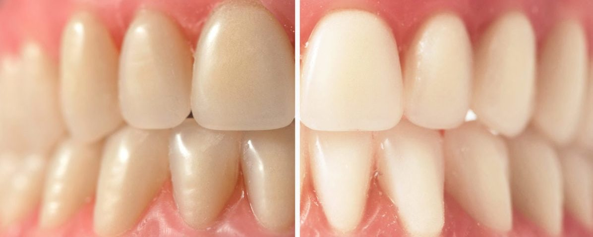 dental whitening kit results