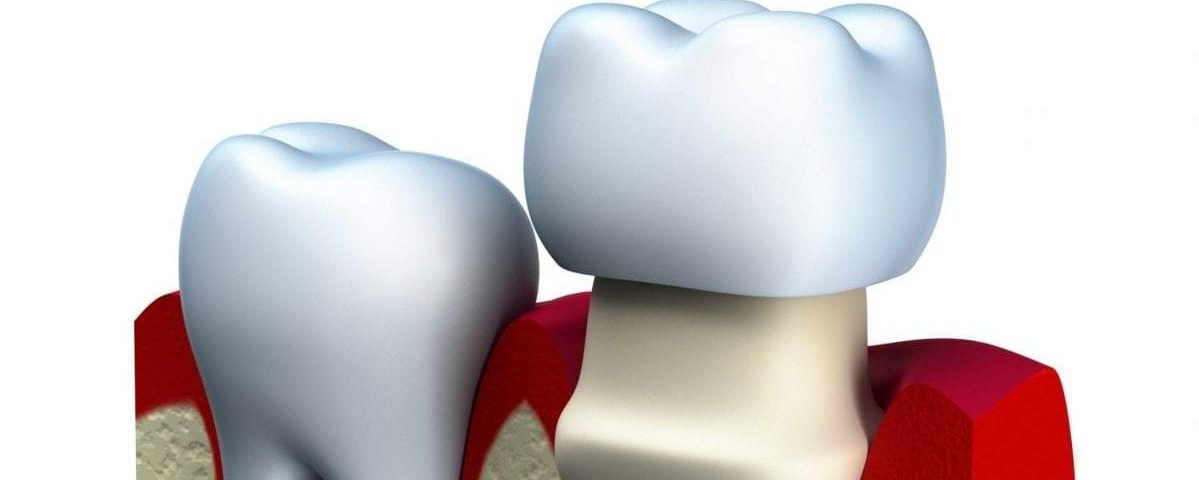 What are dental crowns made of