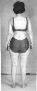 FIG. 3. Postoperative standing posterior view of patient showing erect posture with disappearance of lumbosacral list.