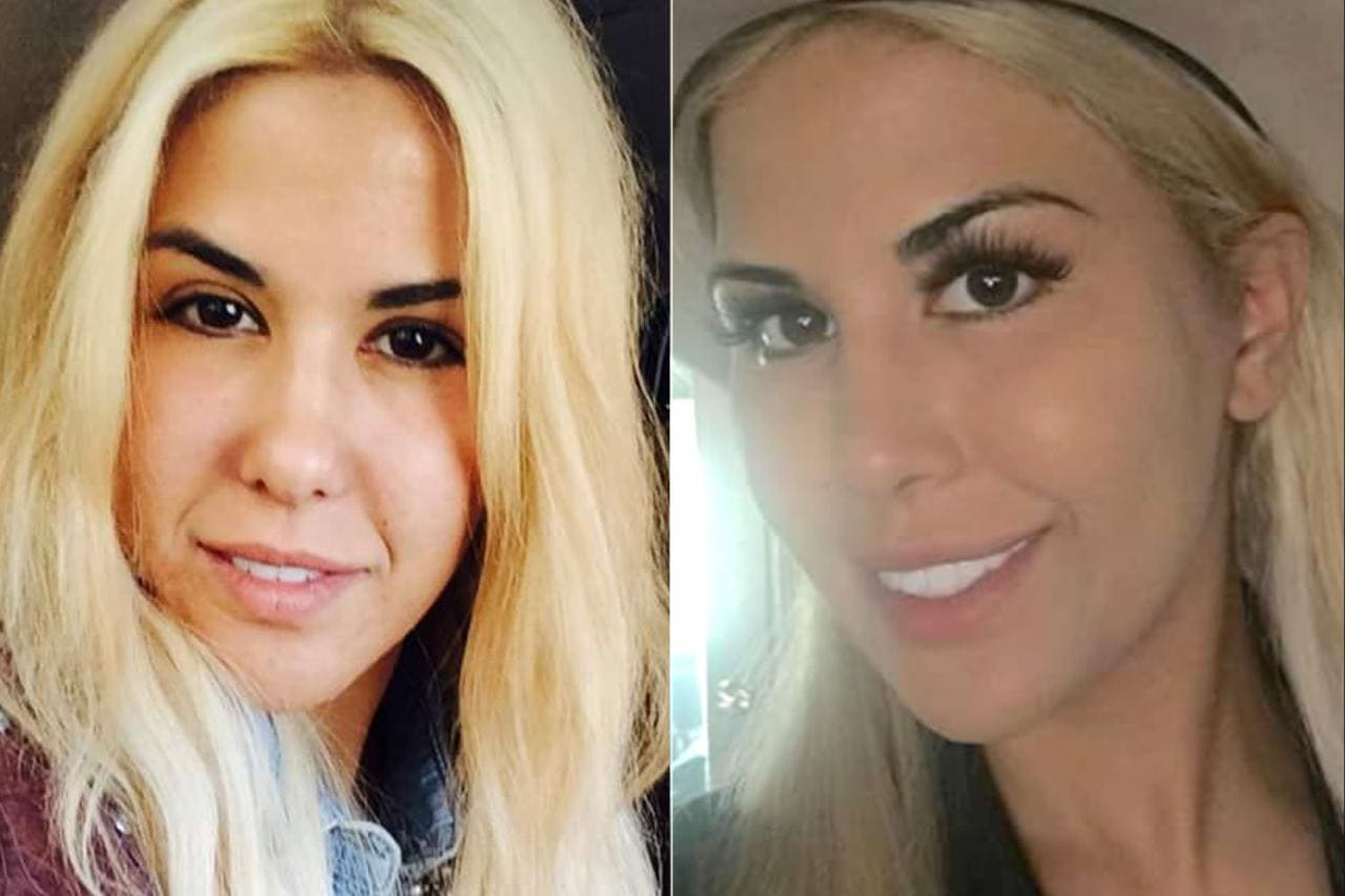 celeb plasticsurgery tiffany taylor 20201203 Has Ivanka Trump had a Plastic Surgery? November 1, 2020