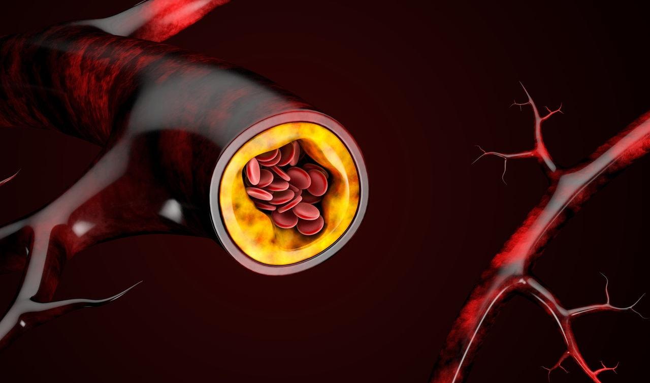 Colesterol alto: 5 doenças graves causadas pelo problema