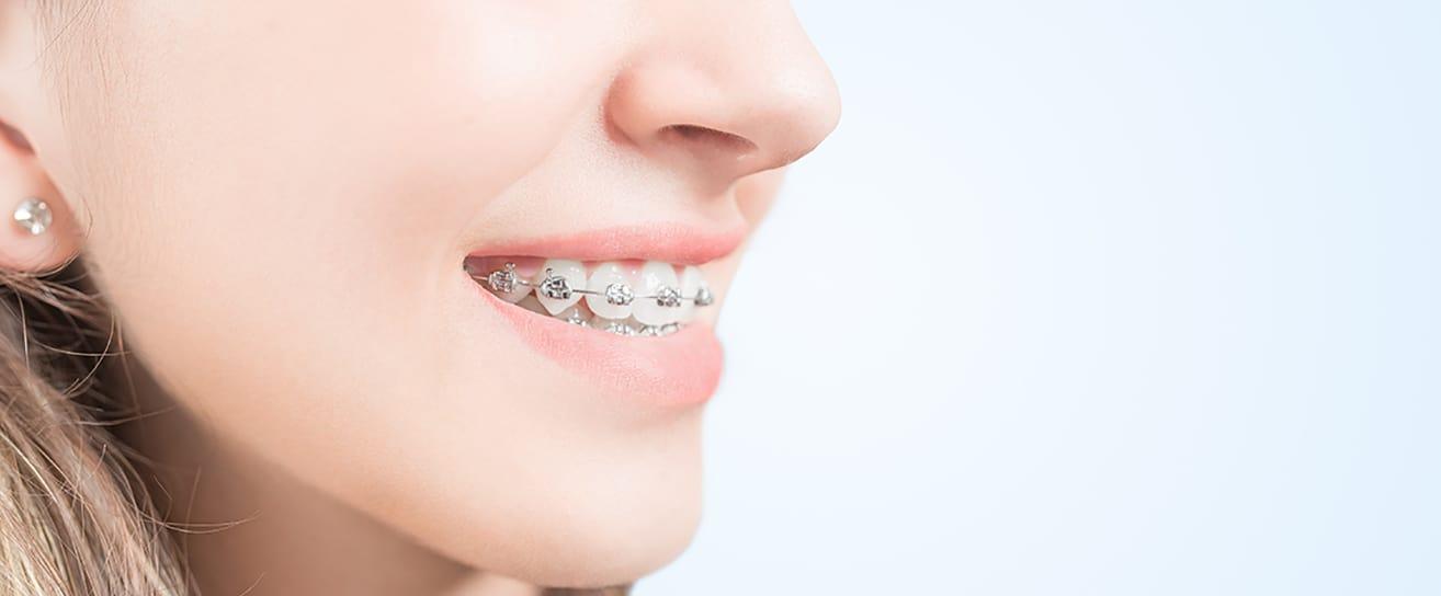 new metal braces