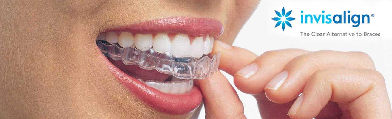Invisalign Braces - Ladera Ranch