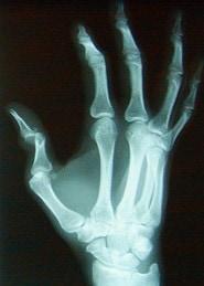 Dislocated-Thumb-Goalie