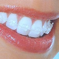 Damon Clear Braces