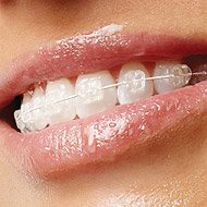 Ceramic Braces - ICE Brackets