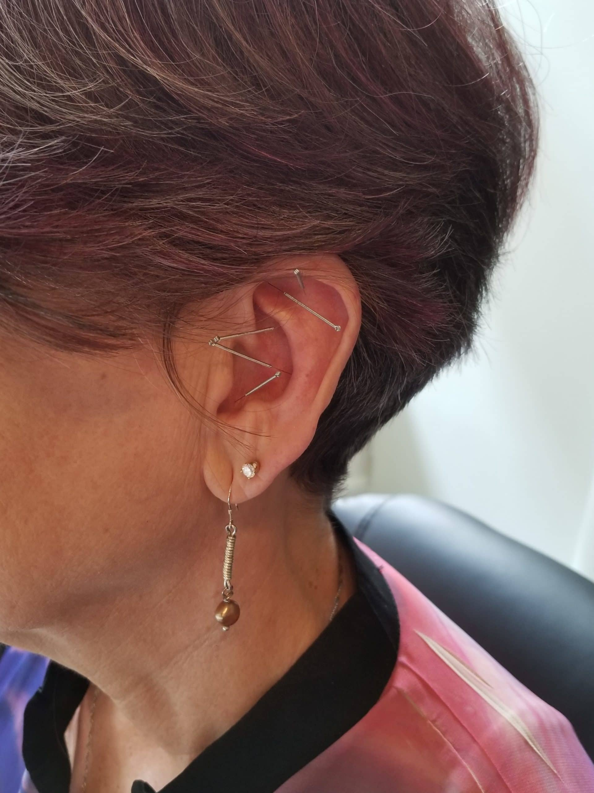 NADA protocol auricular acupuncture five points ear