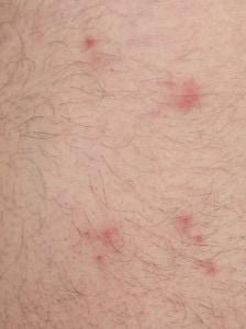 flea bites on skin