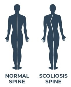 A norma spine vs a spine with scoliosis