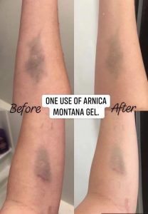 picture of bruised arms relieved by Arnica montana gel