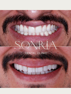 Cosmetic Dentistry - Cosmética Dental