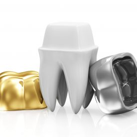 dental crowns and a tooth