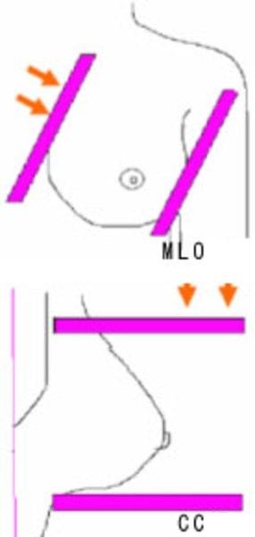MLO CC