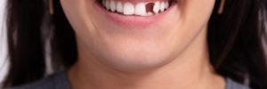 restore your smile incomplete smile