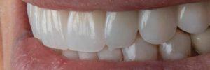 North Shore Prosthodontics