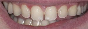 Gapped Teeth