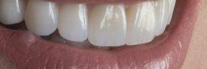 porcelain veneers after treatment