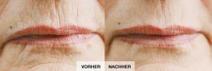 Onetec Vorher/Nachher