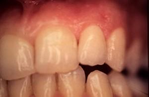 Correction d'une anomalie des dents par facette en céramique