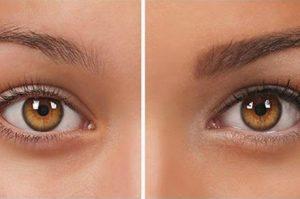 Ögonbrynstransplantation